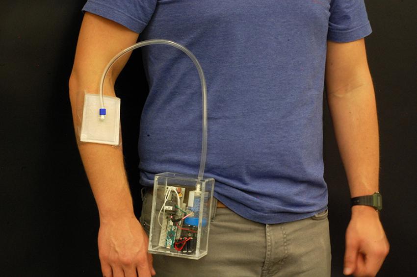 Портативное устройство озонотерапии для лечения хронических ран