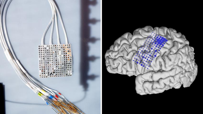 Первый протез под управлением головного мозга по технологии «включай и работай» продемонстрирован у парализованного человека