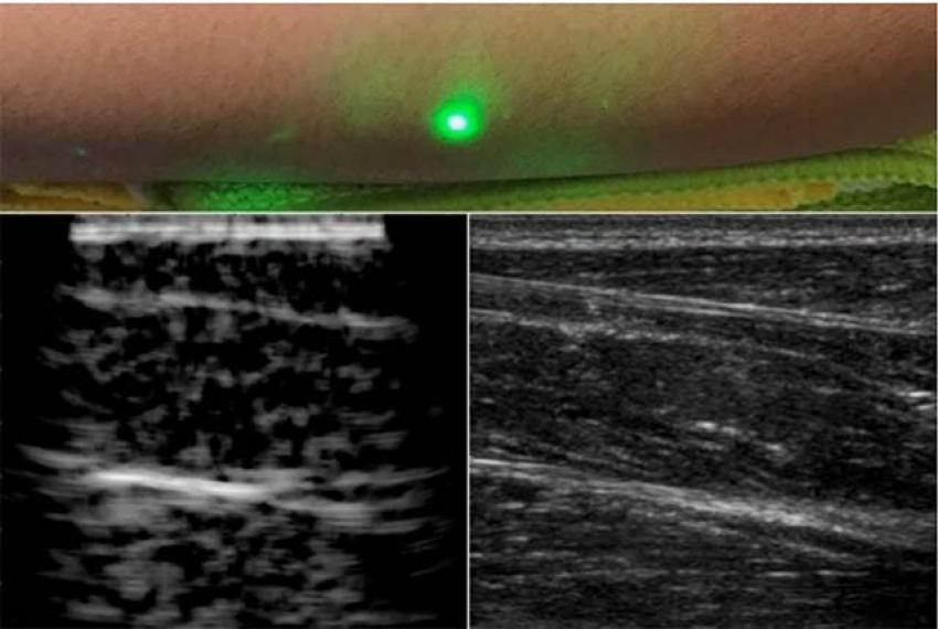 Впервые ученые опробовали лазерное бесконтактное УЗИ на людях